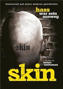 Skin aka Skin - Hass war sein Ausweg